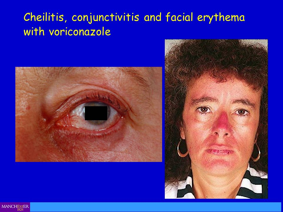 Cheilitis, conjunctivitis and facial erythema with voriconazole