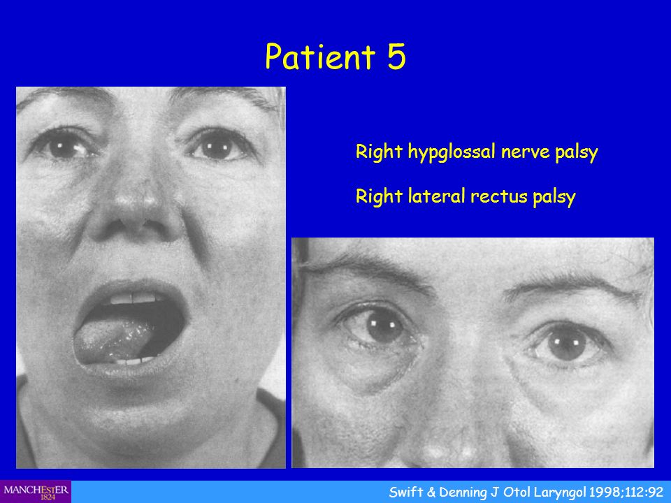 Patient 5 Right hypglossal nerve palsy Right lateral rectus palsy