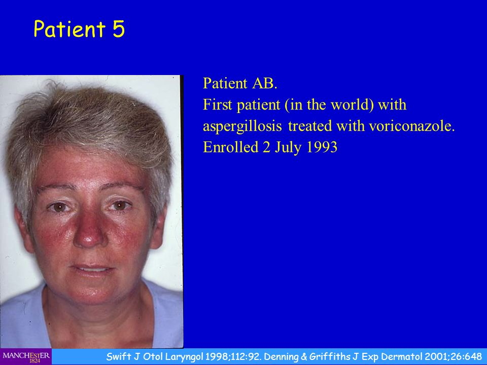 Patient 5 Patient AB. First patient (in the world) with aspergillosis treated with voriconazole. Enrolled 2 July 1993.