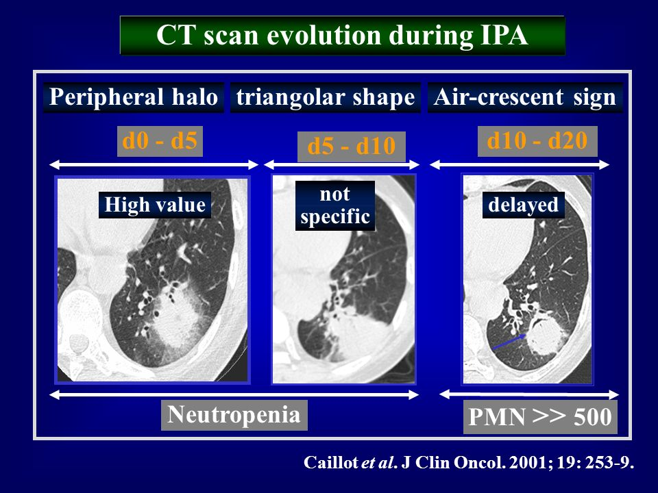 CT scan evolution during IPA