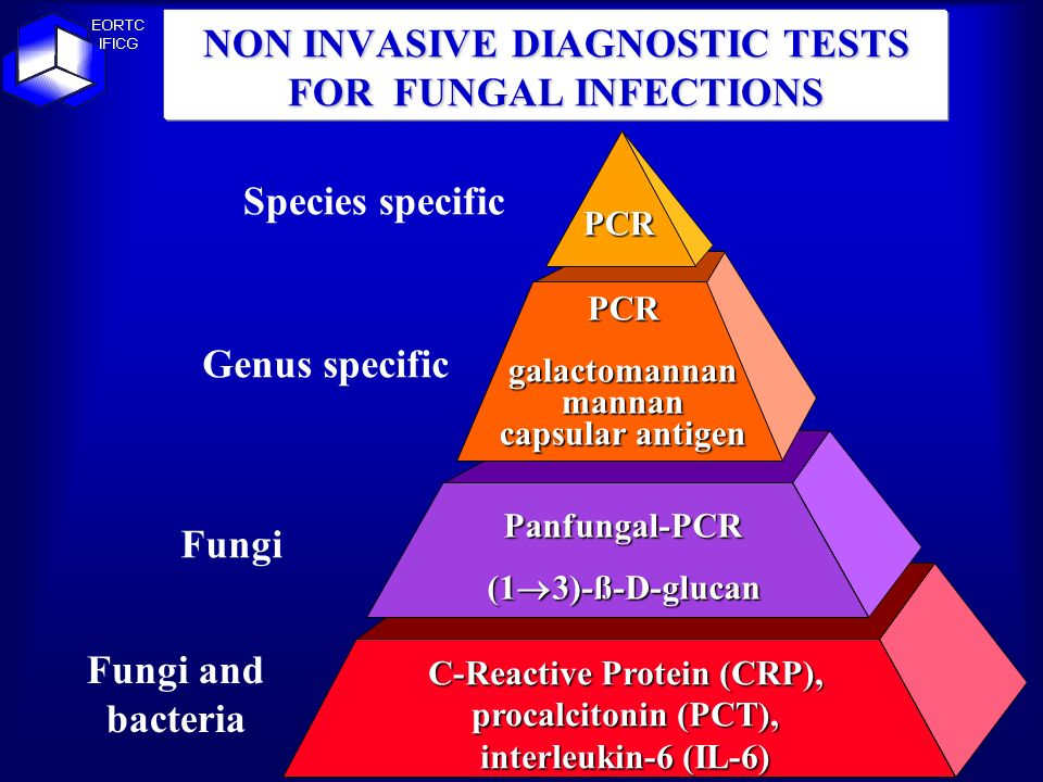 NON INVASIVE DIAGNOSTIC TESTS FOR FUNGAL INFECTIONS