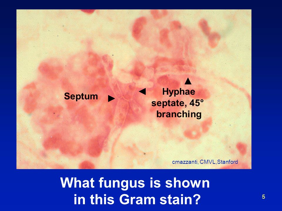 What fungus is shown in this Gram stain