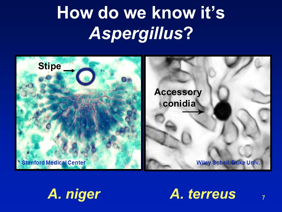 How do we know it's Aspergillus
