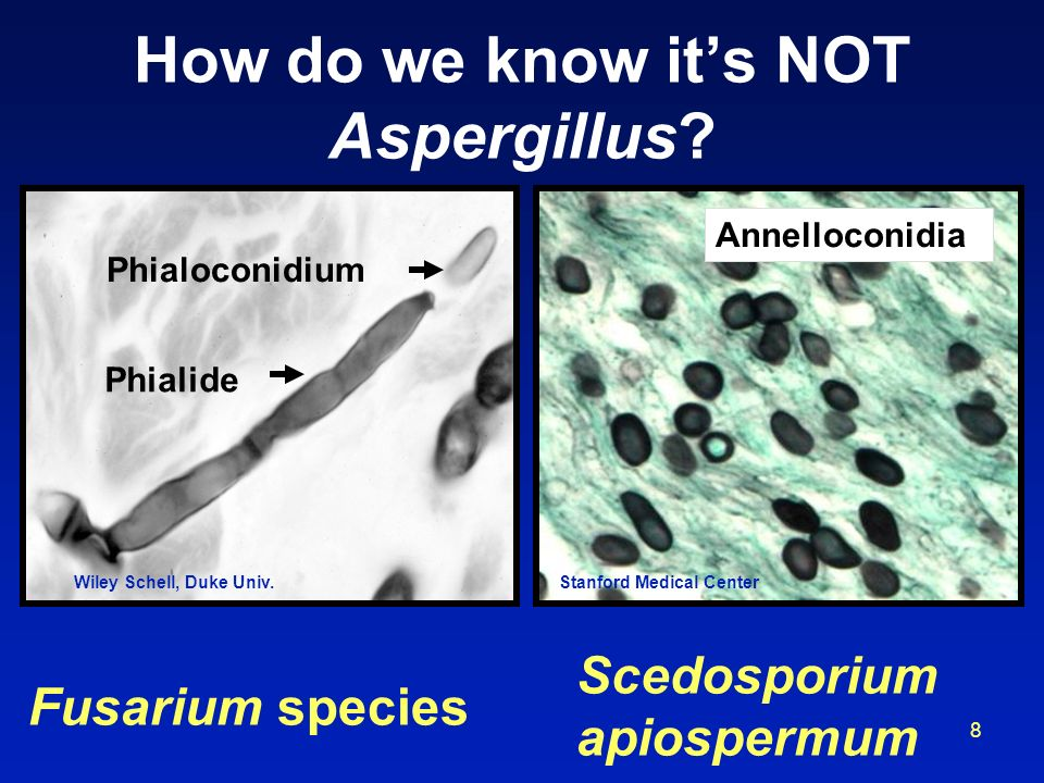How do we know it's NOT Aspergillus