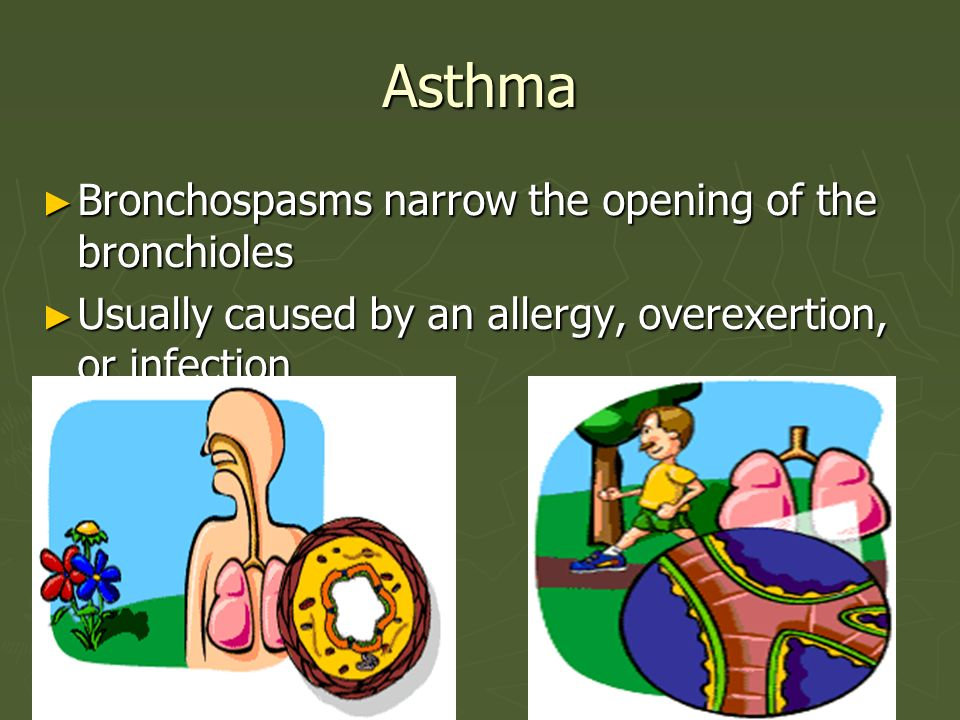 Asthma Bronchospasms narrow the opening of the bronchioles