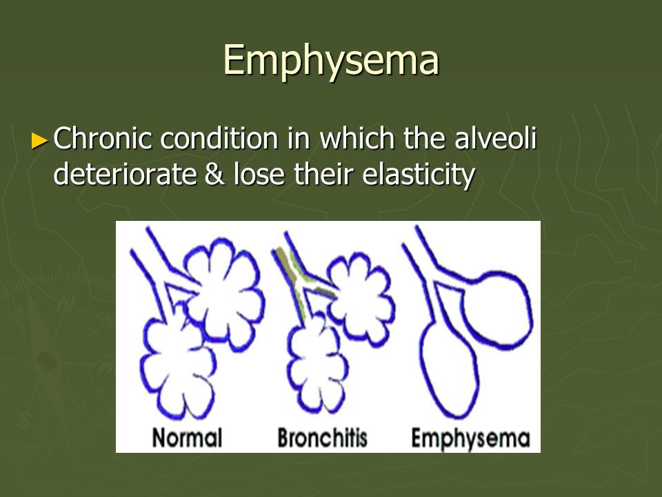 Emphysema Chronic condition in which the alveoli deteriorate & lose their elasticity