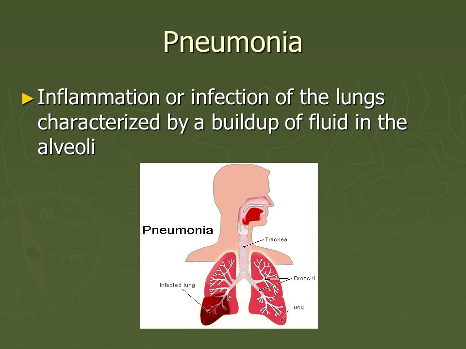 Pneumonia Inflammation or infection of the lungs characterized by a buildup of fluid in the alveoli.
