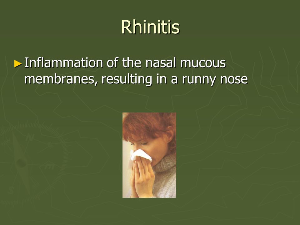 Rhinitis Inflammation of the nasal mucous membranes, resulting in a runny nose