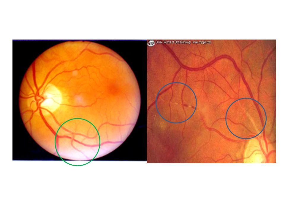hypertensive retinopathy ppt video online download rh slideplayer com copper wiring retinal exam Exudates Retina