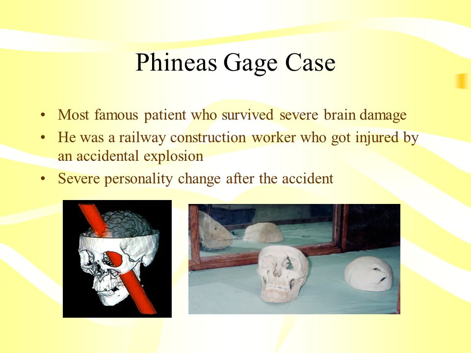 Phineas Gage Case Most famous patient who survived severe brain damage
