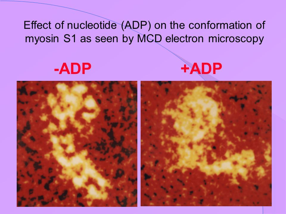 Effect of nucleotide (ADP) on the conformation of myosin S1 as seen by MCD electron microscopy
