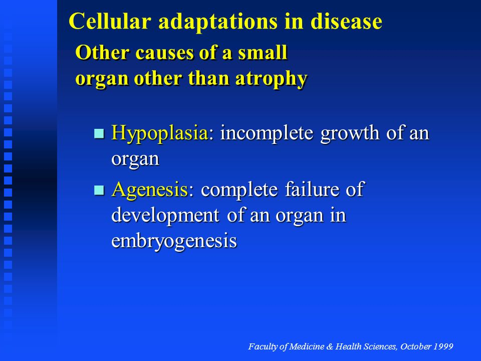Other causes of a small organ other than atrophy