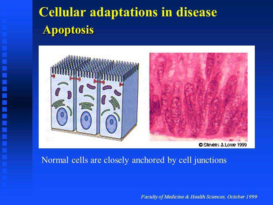 Apoptosis Normal cells are closely anchored by cell junctions