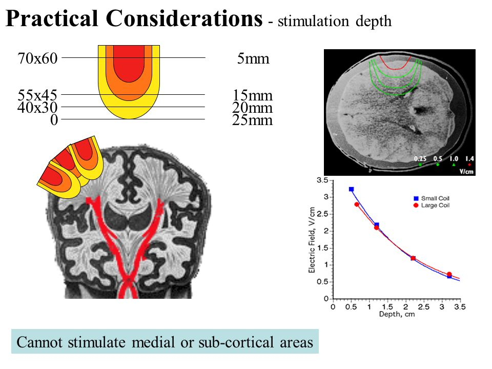 Practical Considerations - stimulation depth
