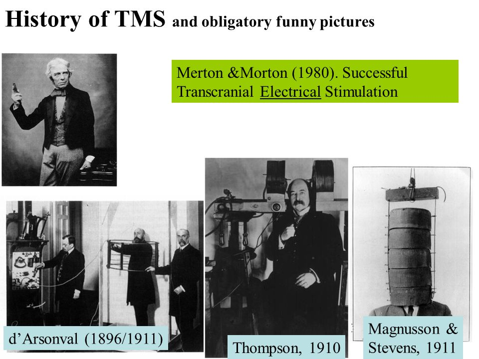 History of TMS and obligatory funny pictures