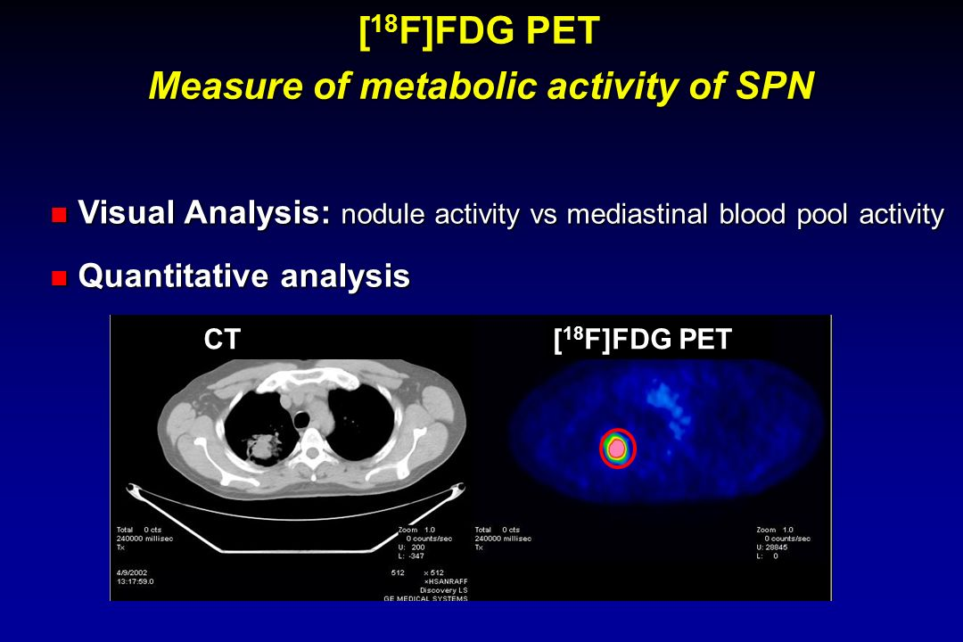 Measure of metabolic activity of SPN