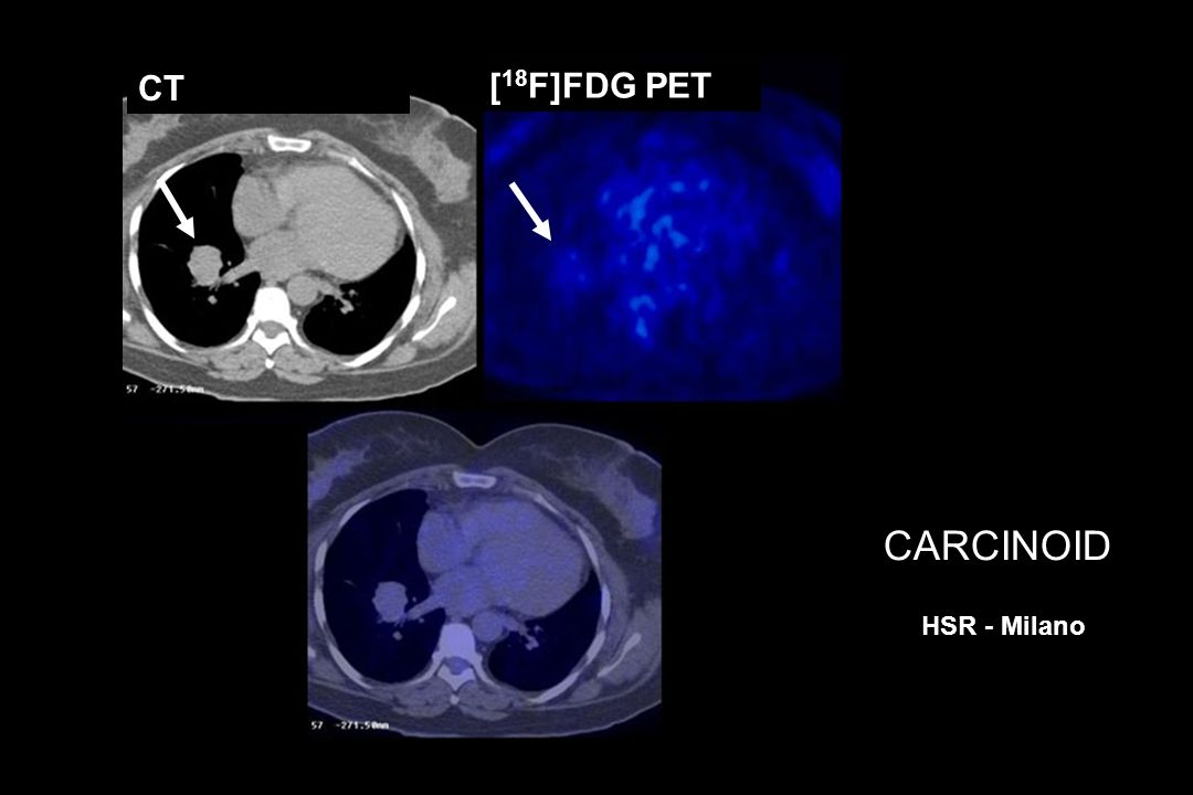 CT [18F]FDG PET CARCINOID HSR - Milano