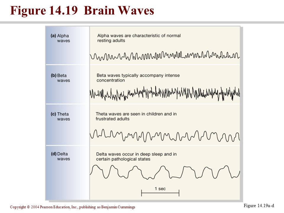 Figure Brain Waves PLAY Figure 14.19a-d