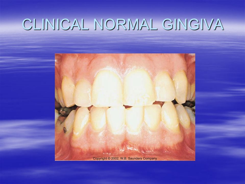 Epidemiology Of Periodontal Disease Ppt Video Online Download
