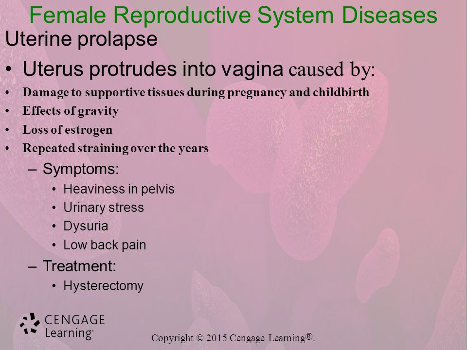 Reproductive System Diseases and Disorders - ppt download