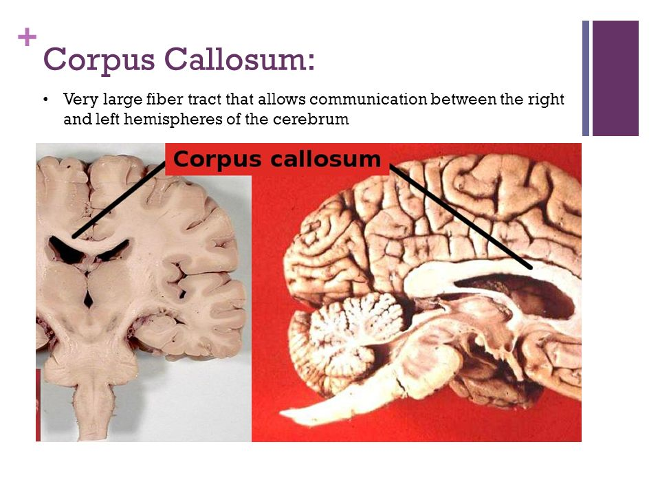 Corpus Callosum: Very large fiber tract that allows communication between the right and left hemispheres of the cerebrum.
