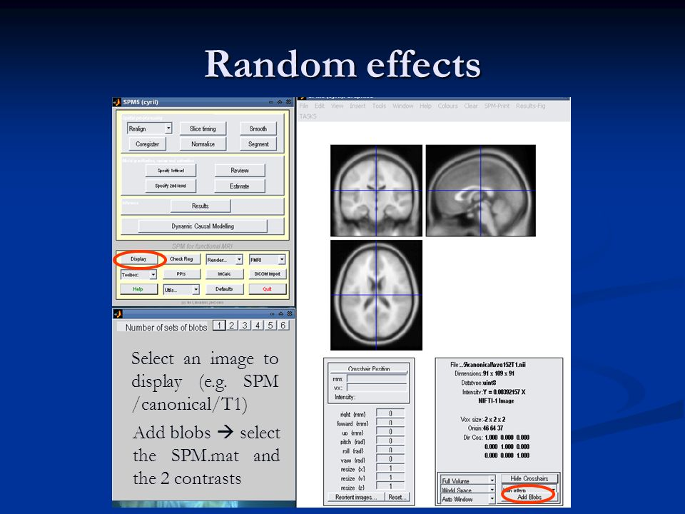 Random effects Select an image to display (e.g. SPM /canonical/T1)