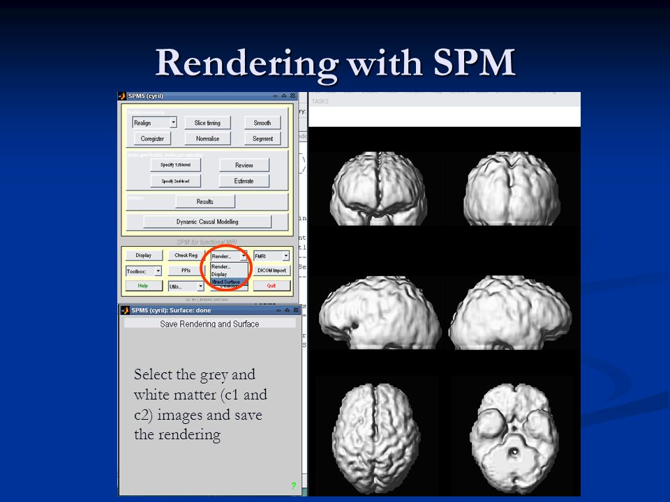 Rendering with SPM Select the grey and white matter (c1 and c2) images and save the rendering