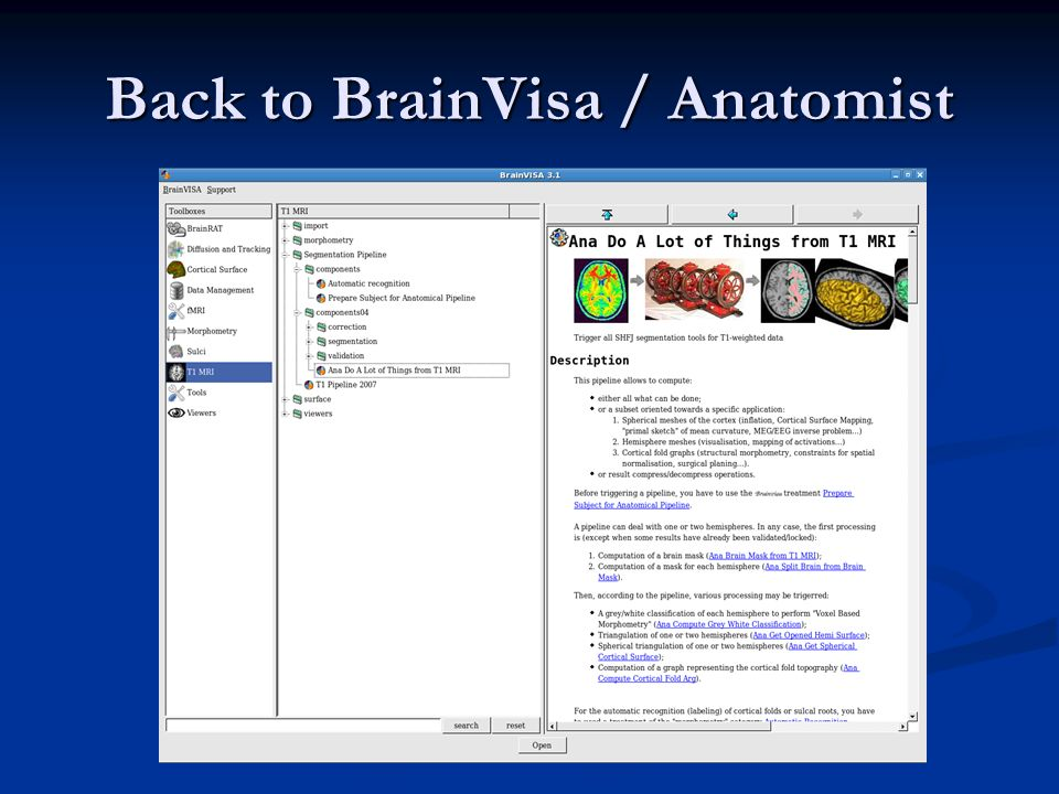 Back to BrainVisa / Anatomist