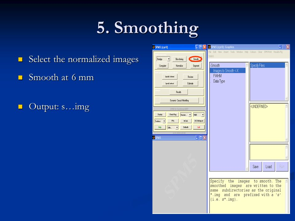 5. Smoothing Select the normalized images Smooth at 6 mm Output: s…img
