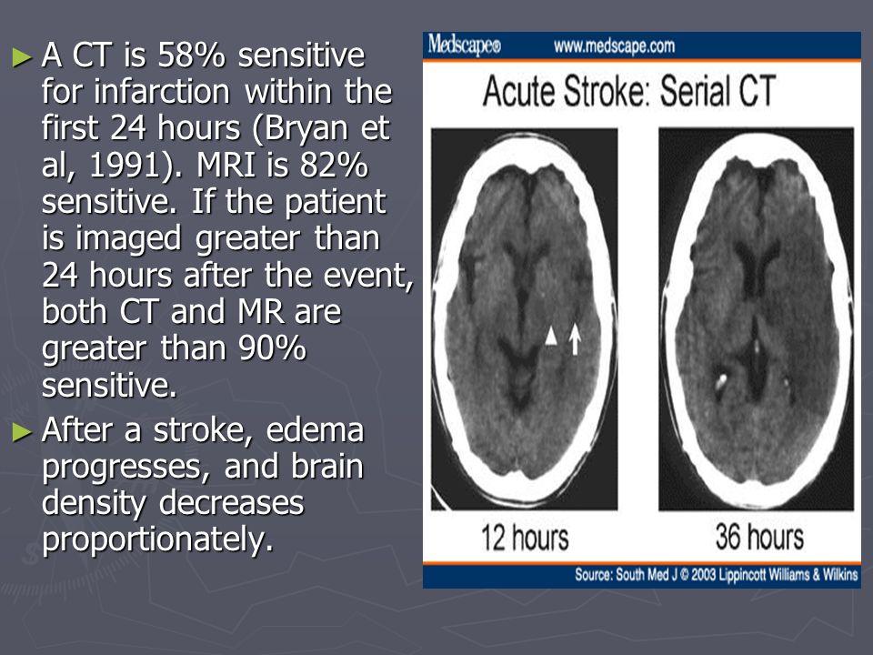 Brain anatomy  - ppt video online download