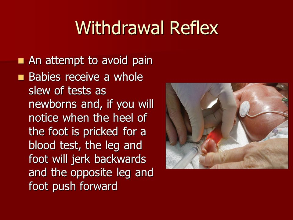 Withdrawal Reflex An attempt to avoid pain