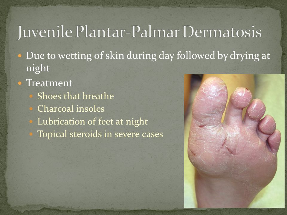 Can help plantar dermatitis in adults excellent
