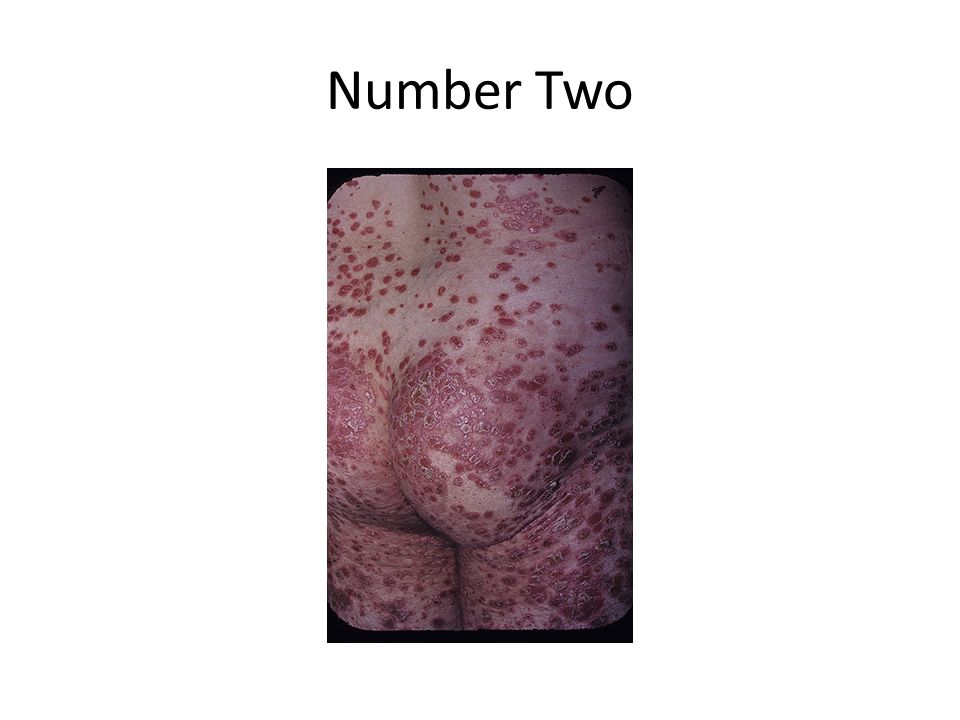 Number Two Guttate Psoriasis