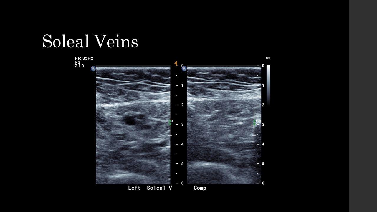 Soleal Vein Ultrasound Topsimages