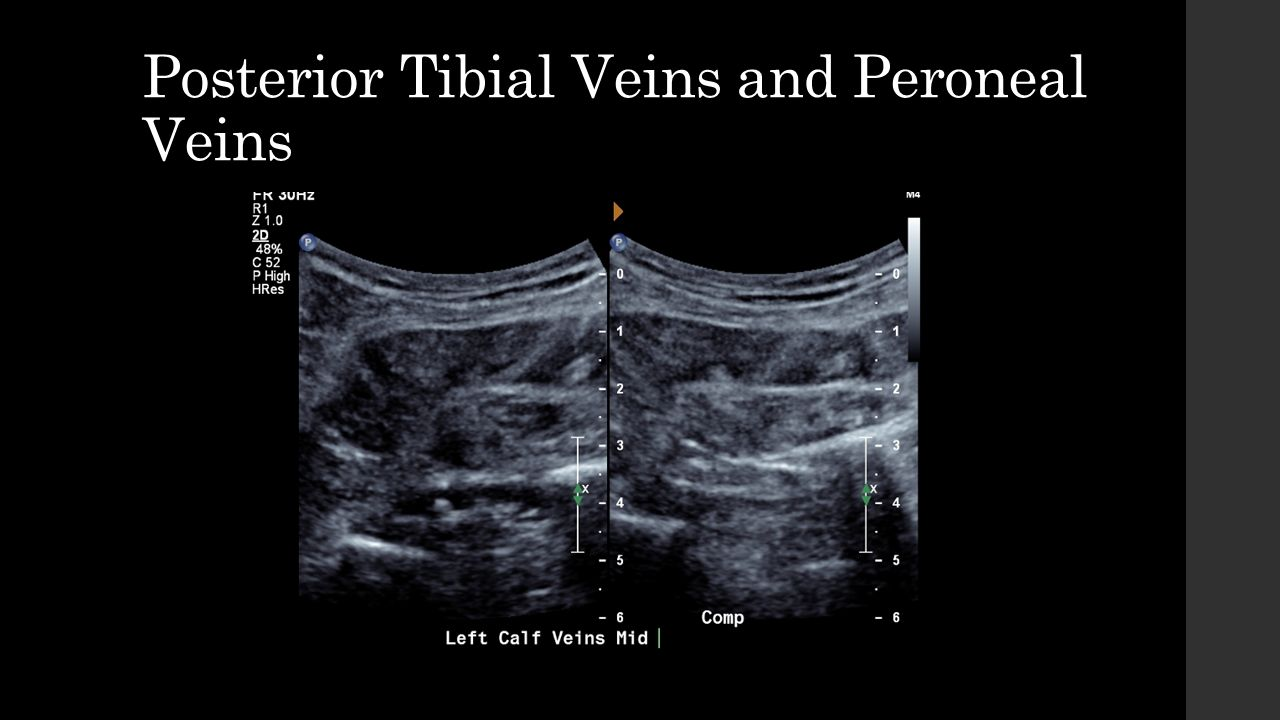 DVT Protocols The following provides details of Upper and Lower Limb ...
