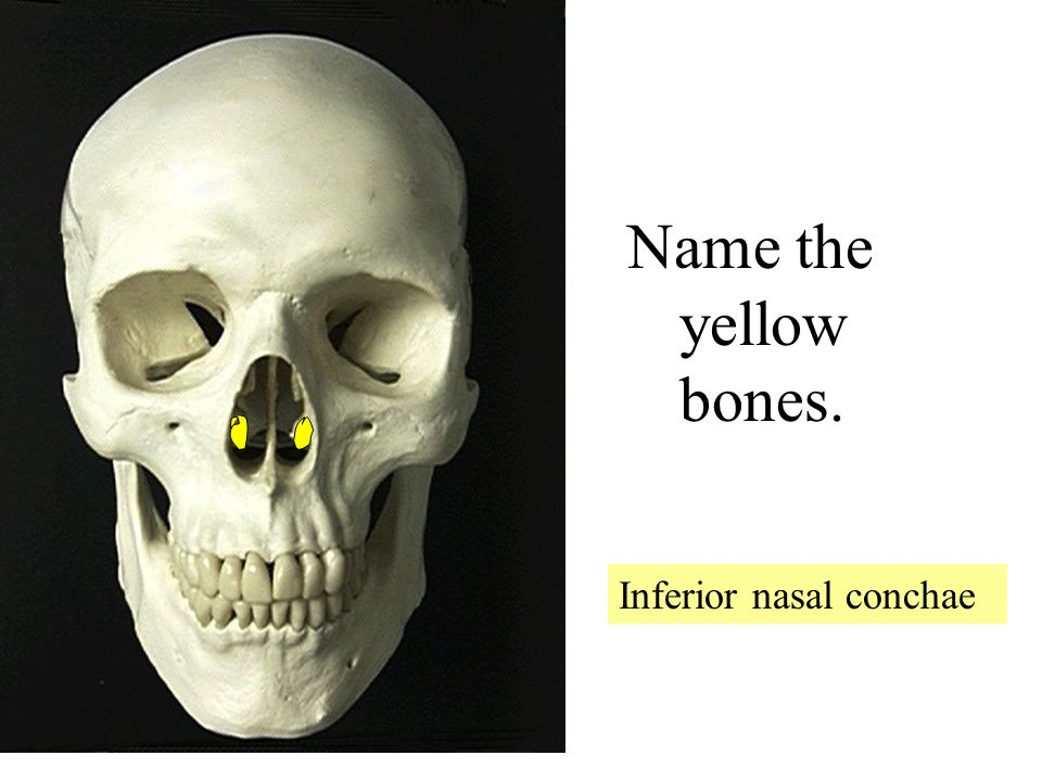 LET\'S REVIEW THE BONES OF THE SKULL - ppt video online download