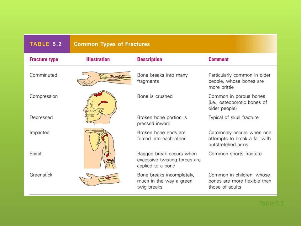 Bone Fractures Fracturebreak In A Bone Types Of Bone Fractures