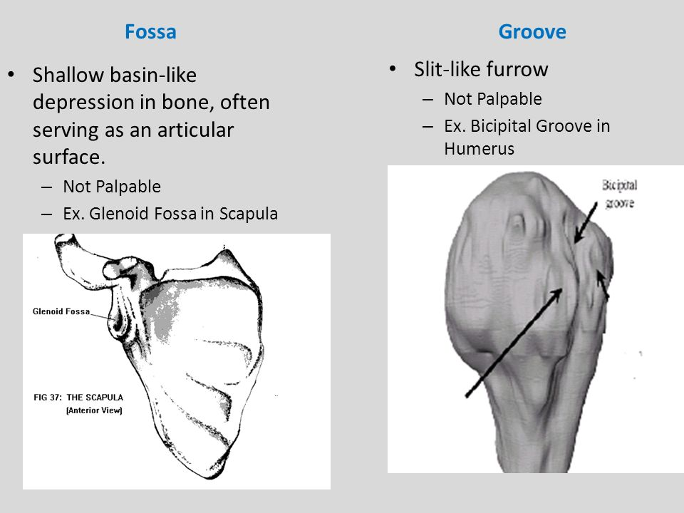 Bone Markings -Bone markings can be classified as either a ...