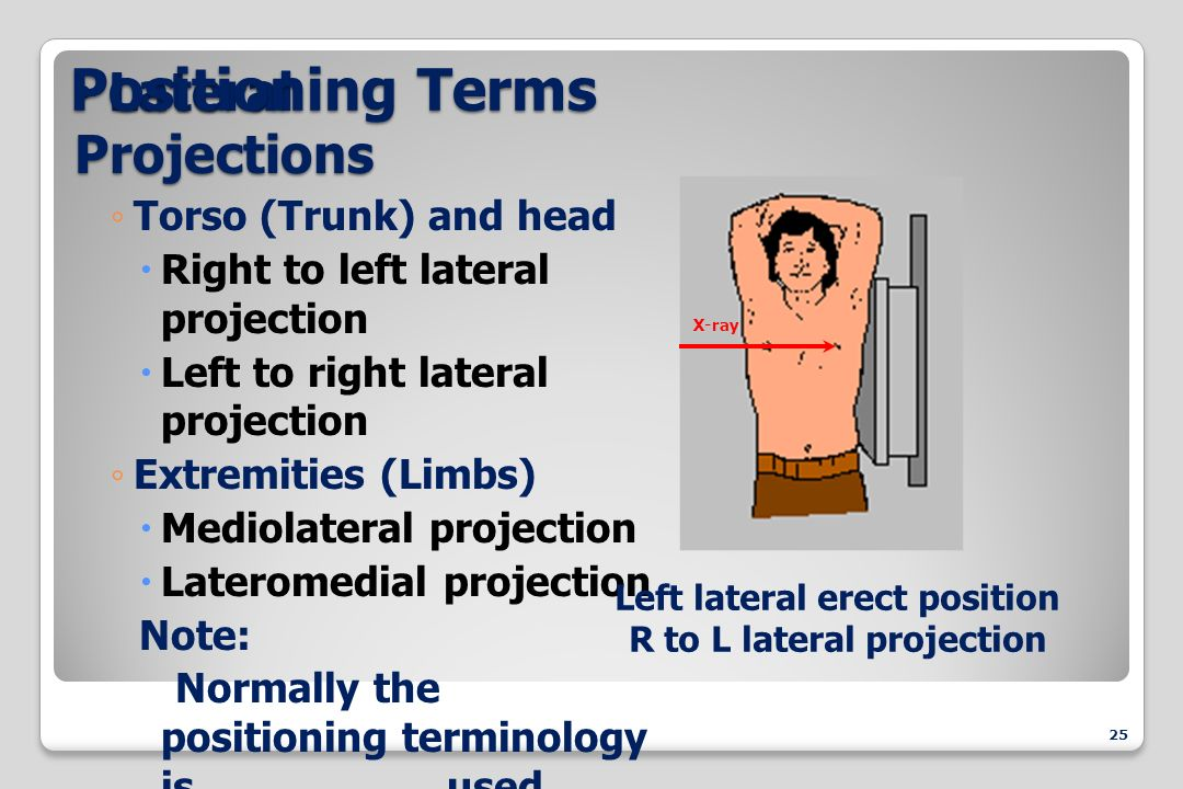 medical terminology chapters 13 14 102 terms pacergold medical terminology: chapters 13 & 14 special senses: ear and eye.