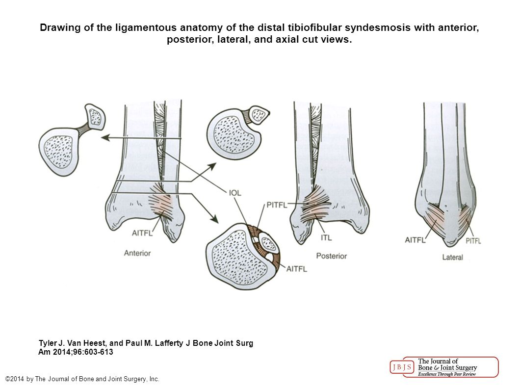 Injuries to the Ankle Syndesmosis - ppt video online download