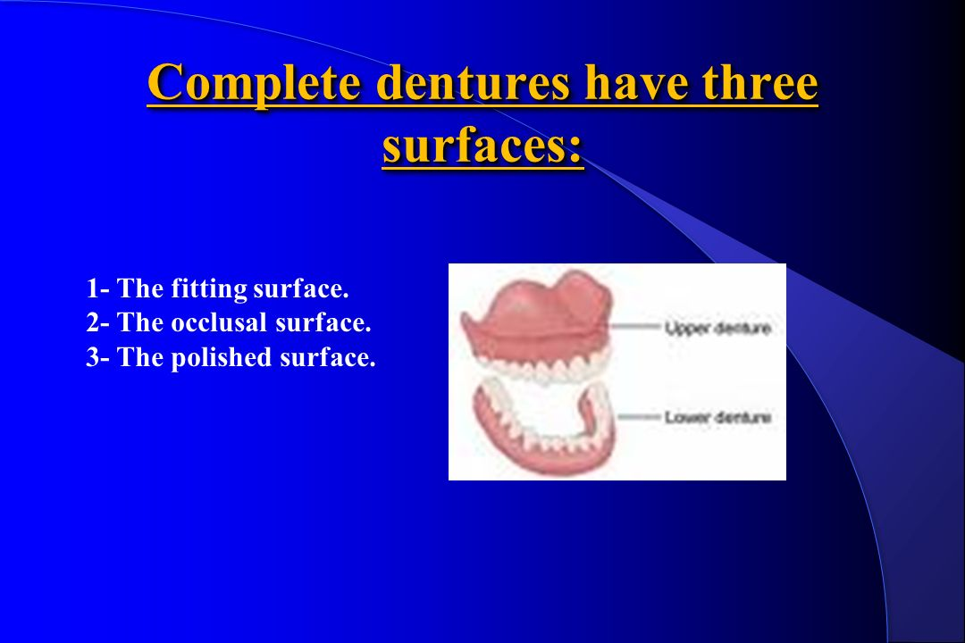 Laboratory stages of manufacture of complete dentures - ppt