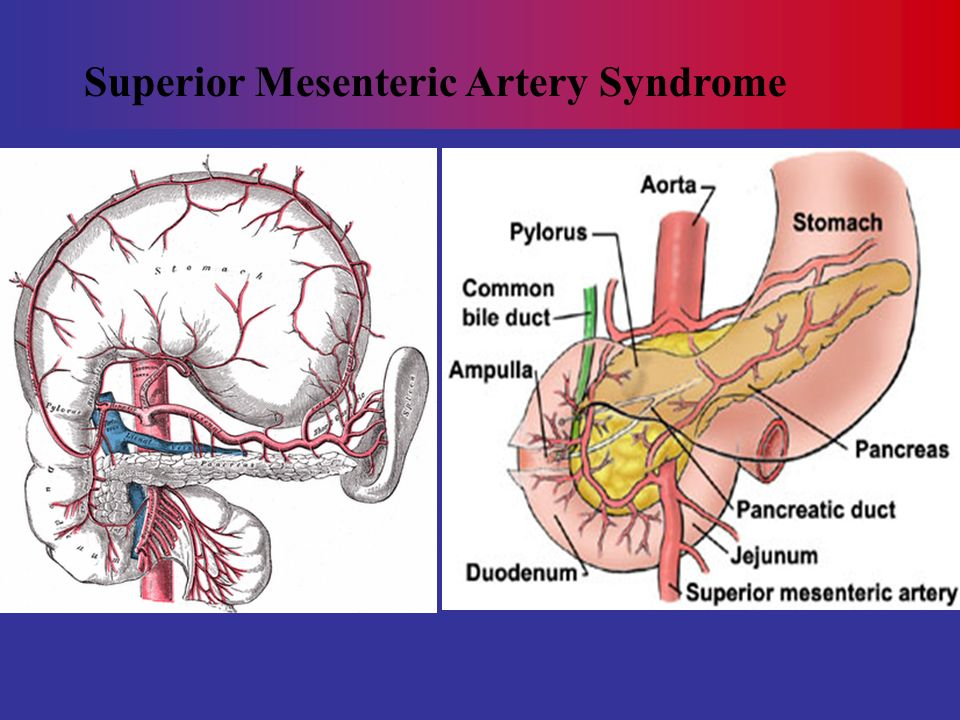 Superior Mesenteric Artery Syndrome Ppt Video Online Download