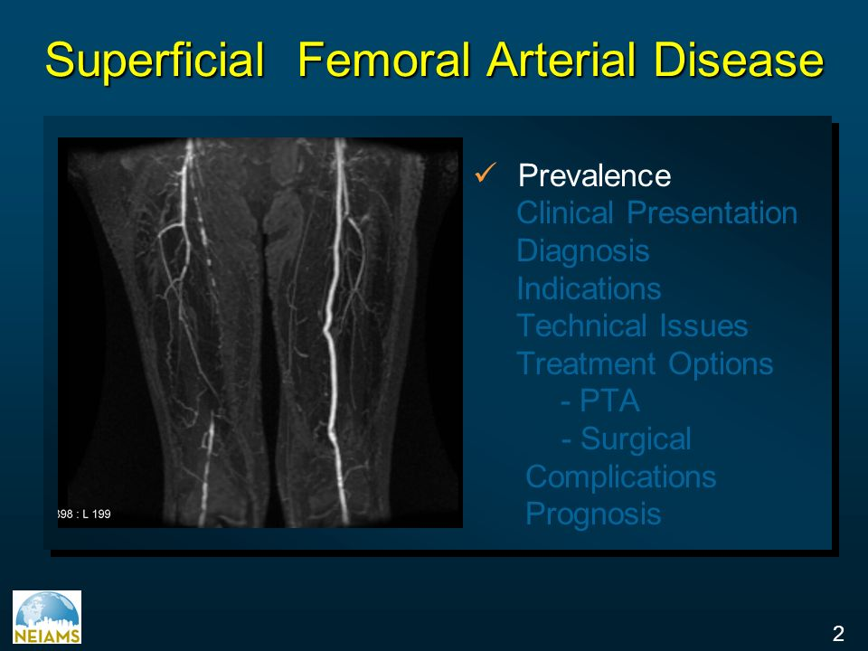 Superficial Femoral Artery Disease Ppt Video Online Download
