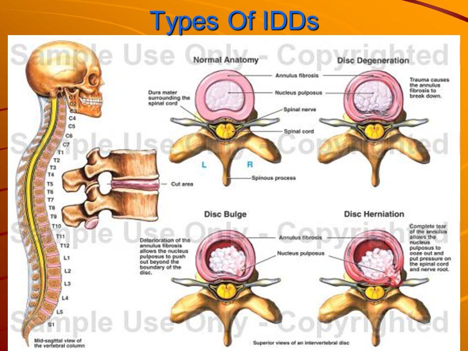 Intervertebral Disc Displacement Ppt Download