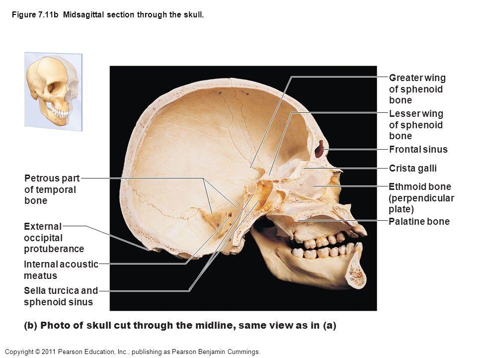 Midsagittal Skull Bone Diagram Wiring Diagram Online