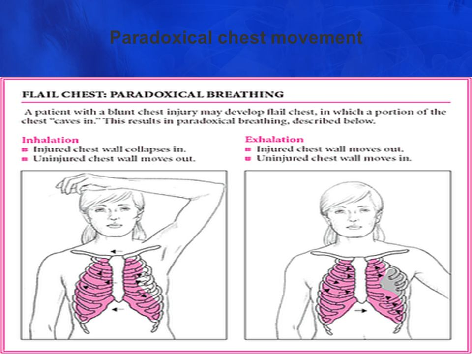 Chest Injuries Supervised By Dr Waseem Hajjar Ppt Video Online