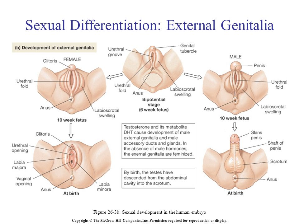Disorder Of Sexual Differentiation