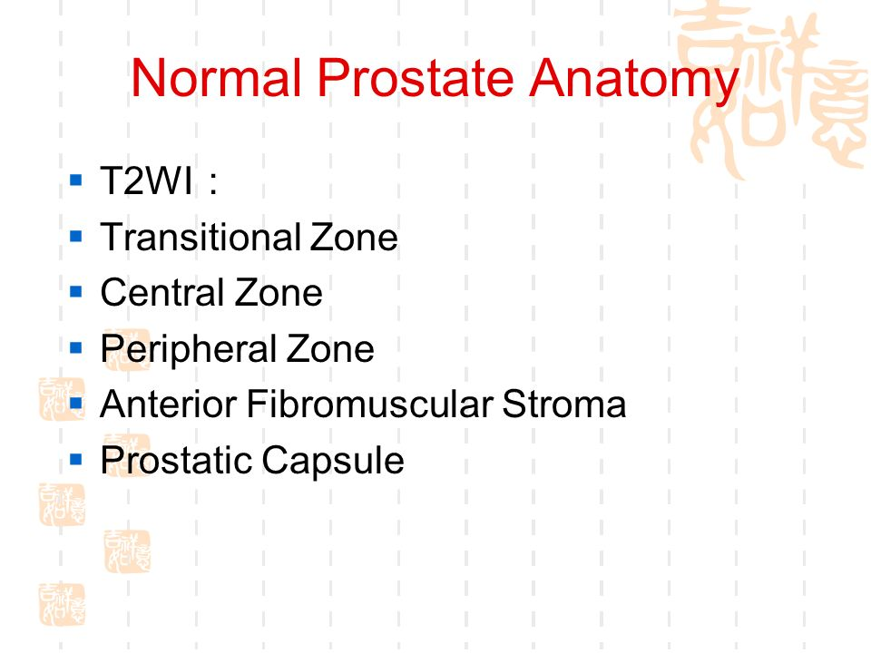 Genitourinary Imaging-----Prostate - ppt download