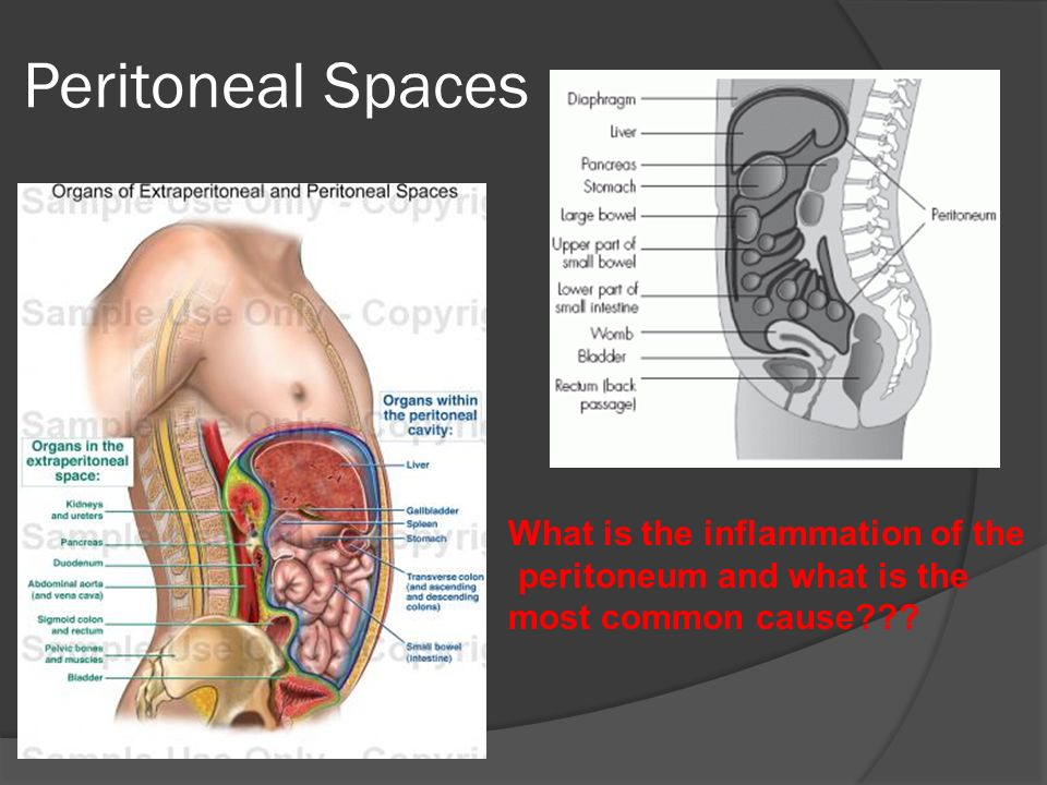 Luxury Peritoneal Spaces Anatomy Mold - Anatomy And Physiology ...