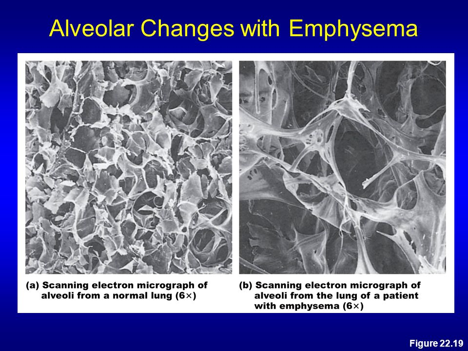 Alveolar Changes with Emphysema